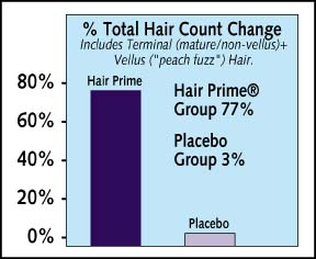 HAIRPRIME HAIR LOSS THINNING HAIR TREATMENTS